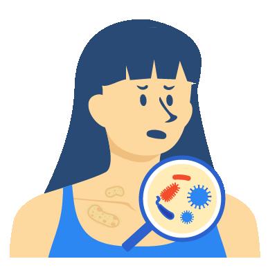 Penyakit Tropik-Infeksi