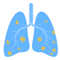 Trị liệu hô hấp